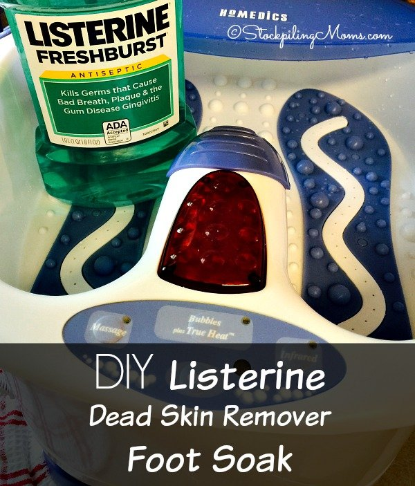 DIY Listerine Dead Skin Remover Foot Soak really works with only a few items! Perfect for summer pedicures.