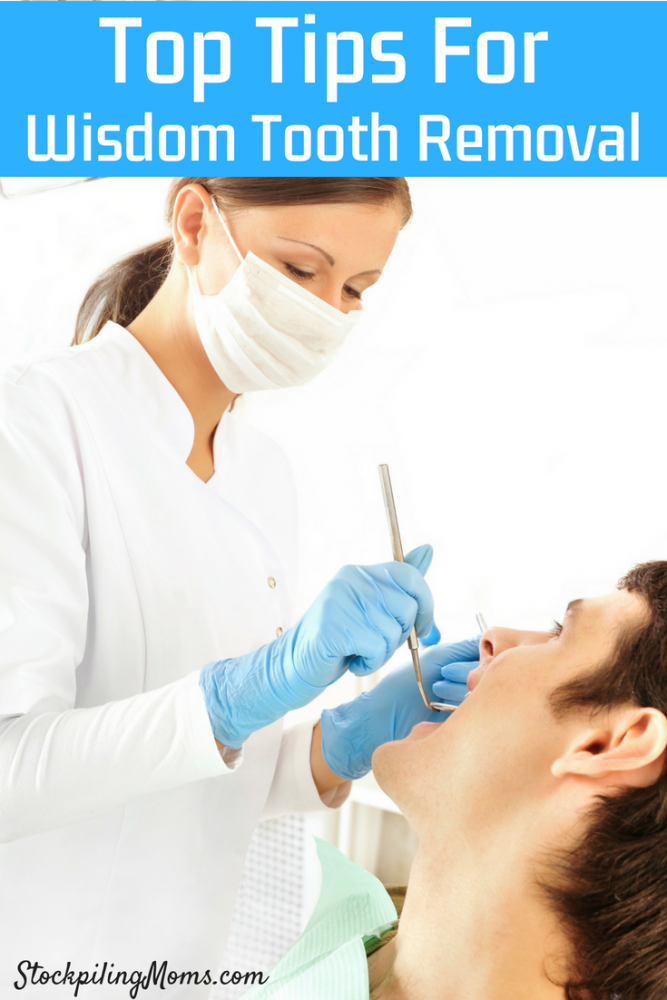 Best Wisdom Tooth Removal Tips